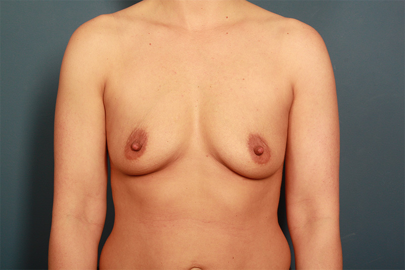 Breast Implants Before & After Image