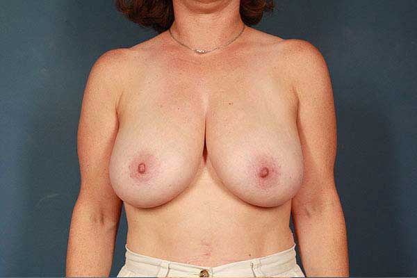 Breast Lift Before & After Image