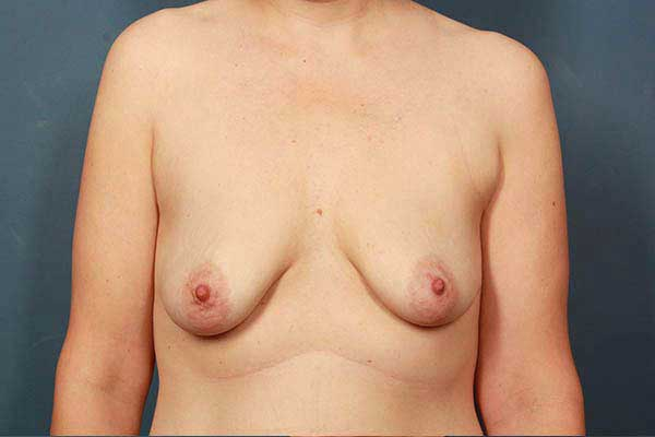 Periareolar Breast Lift Before & After Image
